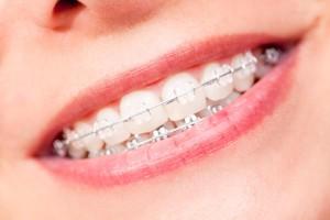 14 pytań o aparaty ortodontyczne